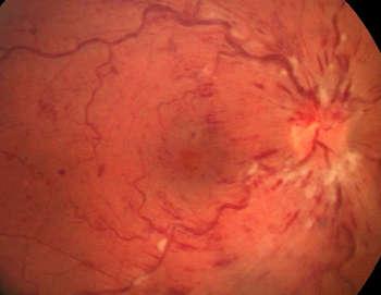 Aspect typique d'une occlusion de la veine centrale de la rétine, avec dilatation et tortuosité de l'ensemble des veines rétiniennes, associées à des hémorragies et des nodules cotonneux.