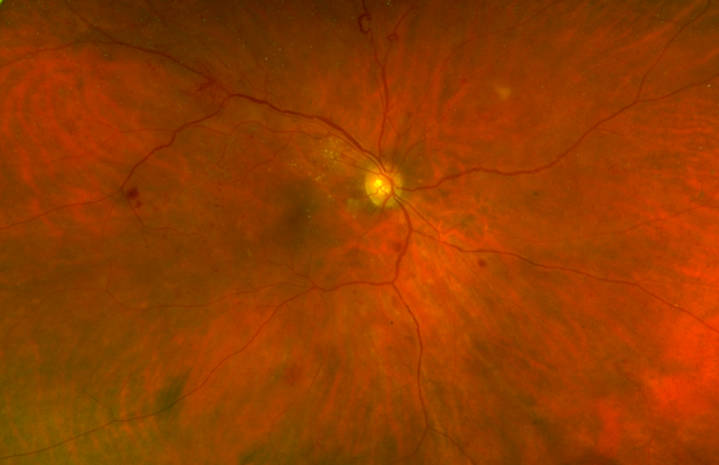 Color photography: aspect of diabetic retinopathy