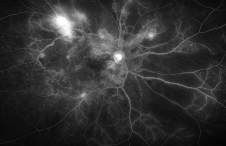 Fluorescein angiography: aspect of diabetic retinopathy.